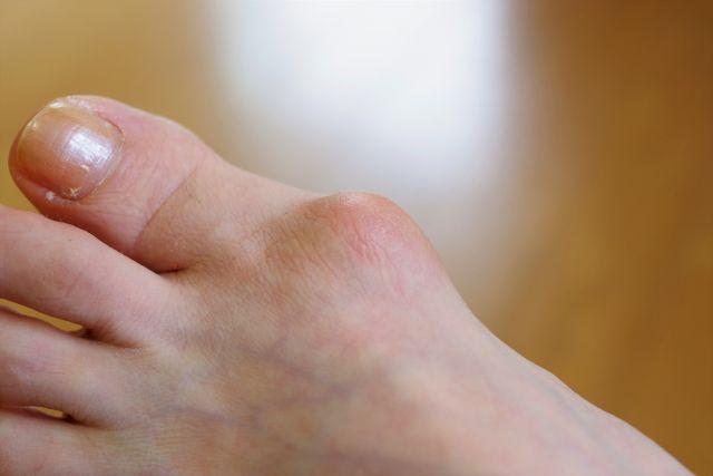 腫れ 足 親指の付け根